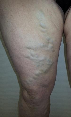 Что такое варикоз и как его лечить безопасно для пациента?