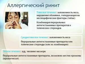 Насморк - особенности болезни