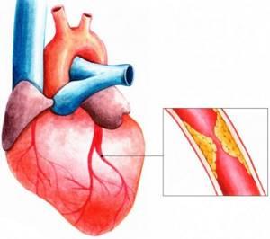 Стенокардия: причины, симптомы, питание и профилактика