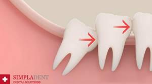 Компрессы с настоем алоэ при острой зубной боли
