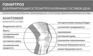 Лечение артроза коленного сустава: консервативные методы и операция