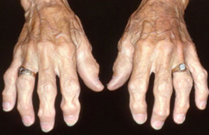 Линкомицина гидрохлорид (lincomycini hydrochloridum)