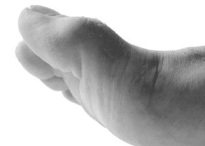 Как избавиться от мозолей: 14 практических советов по их устранению