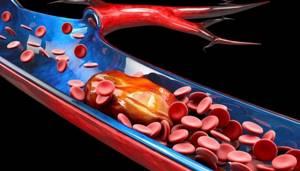 Тромбоэмболия артерий конечностей - причины, симптомы и лечение