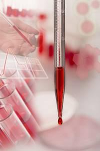 Что такое эритроциты: функции и характеристики красных кровяных телец