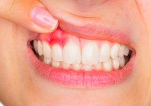 Чем полоскать полость рта при гингивите и пародонтите?