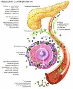 Нарушения обмена углеводов в организме и сахарный диабет