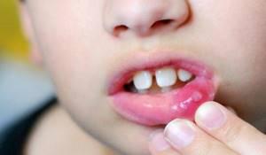 Что следует знать про афтозный стоматит: Симптомы, причины и лечение болезни