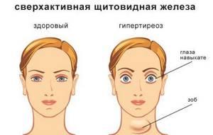 Правила при лечении заболеваний щитовидной железы