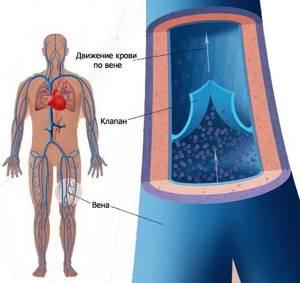 Что способствует развитию варикозной болезни?