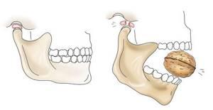 Народное средство использованное при зубной боли