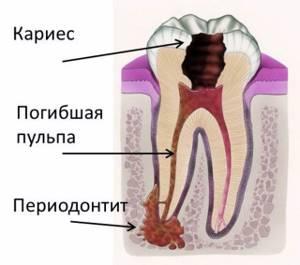Периодонтит - причины, признаки и лечение