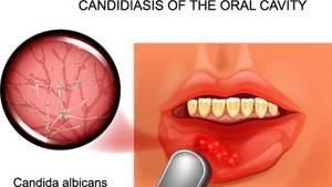 Кандидоз кожи - симптомы и течение