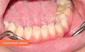 Инфекционные болезни зубов и десен: Какой риск они представляют?