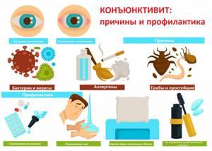 Что такое конъюнктивит: Причины, симптомы и лечение