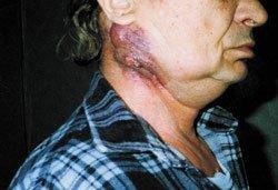 Актиномикоз челюстно-лицевой