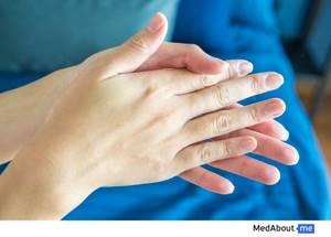 Чесотка: симптомы, причины и лечение этого паразитарного заболевания