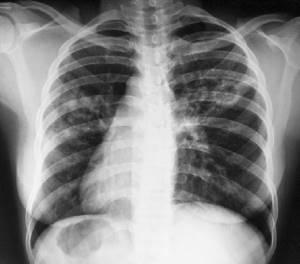 Что такое туберкулёз и как его лечить чтобы устранить признаки и причины?