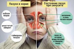 Гайморит - симптомы и лечение