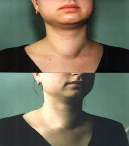 Народные рецепты лечения опухолей и узлов на щитовидной железе