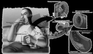 Как снизить холестерин в крови: методы, лекарства и народные средства