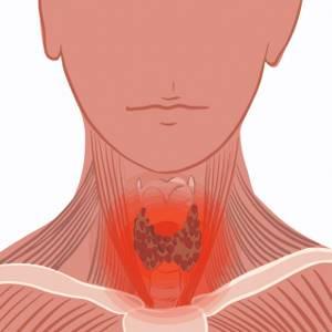 Нарушения структуры щитовидной железы - причины, диагностика и лечение