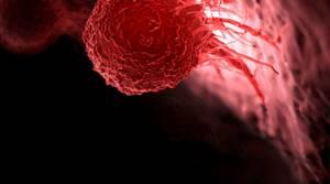 Самые встречаемые виды рака у человека