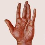 Контрактура Дюпюитрена - причины, симптомы и лечение