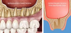 Кровотечение после хирургического удаления зуба