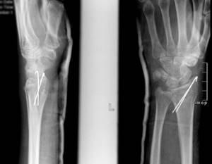 Переломы головки и шейки лучевой кости
