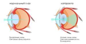 Что такое катаракта: симптомы, причины и лечение болезни