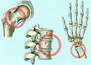 Остеопороз: всё про симптомы, причины и лечение
