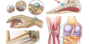 Зашивание поверхностных ран - ход операции, материалы и инструменты