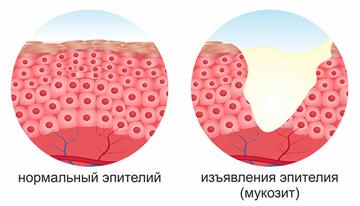 Антисептик для полоскания полости рта из скумпии кожевенной