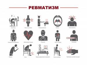 Что такое ревматизм: признаки, виды, причины и лечение заболевания