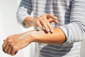 Как защитить кожу от Солнца: 21 средство от солнечных ожогов