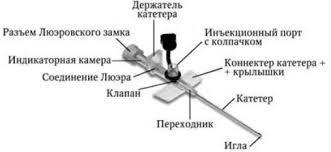 Техника внутривенного капельного вливания - материалы, инструменты и ход манипуляций