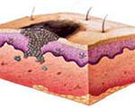Какие виды опухолей кожи бывают?
