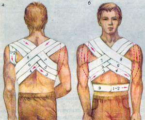 Повязки на грудную клетку