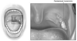 Лечение ангины в домашних условиях - советы и инструкции