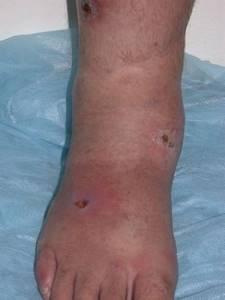 Расширение вен на ногах