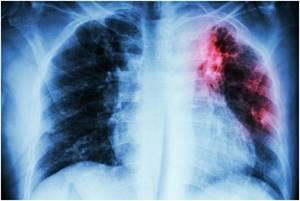 Туберкулёз - симптомы, лечение, диагностика и профилактика