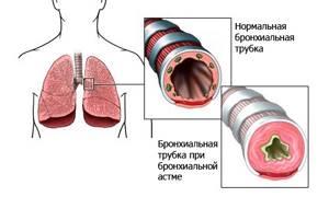 Что такое астма? Причины, симптомы, лечение и профилактика болезни