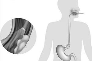 Рак пищевода - признаки и лечение