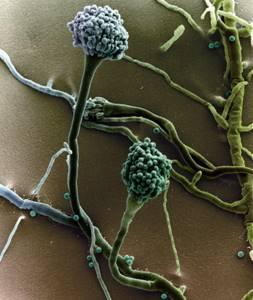 Кандидоз легких, бронхов - симптомы и течение