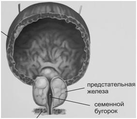Аденома простаты: причины, профилактика и питание