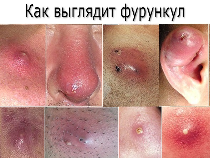 Лечение фурункулов народными средствами в домашних условиях