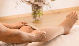 15 способов как лечить варикоз в домашних условиях