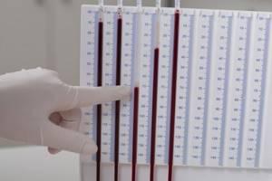 Состав крови здорового человека