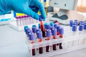 Холестерин: норма и как снизить его уровень в крови